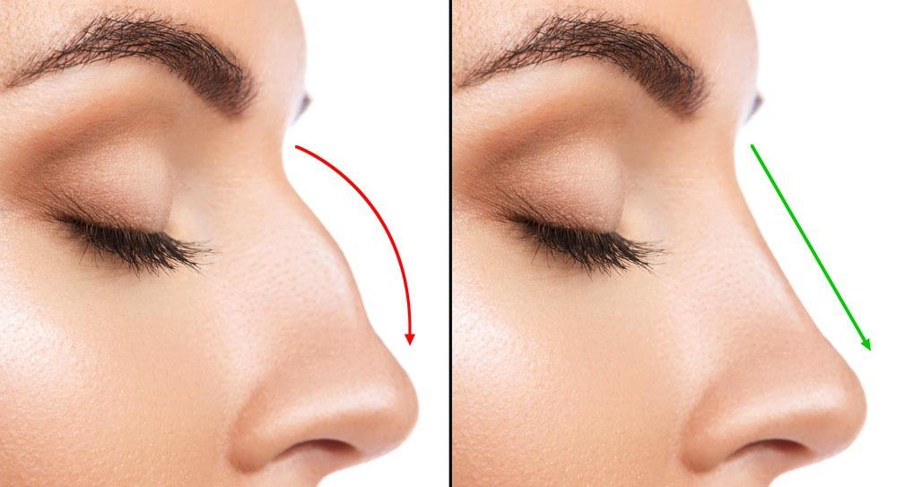 Нитевая коррекция носа — Лайф Клиник — Медицинский центр